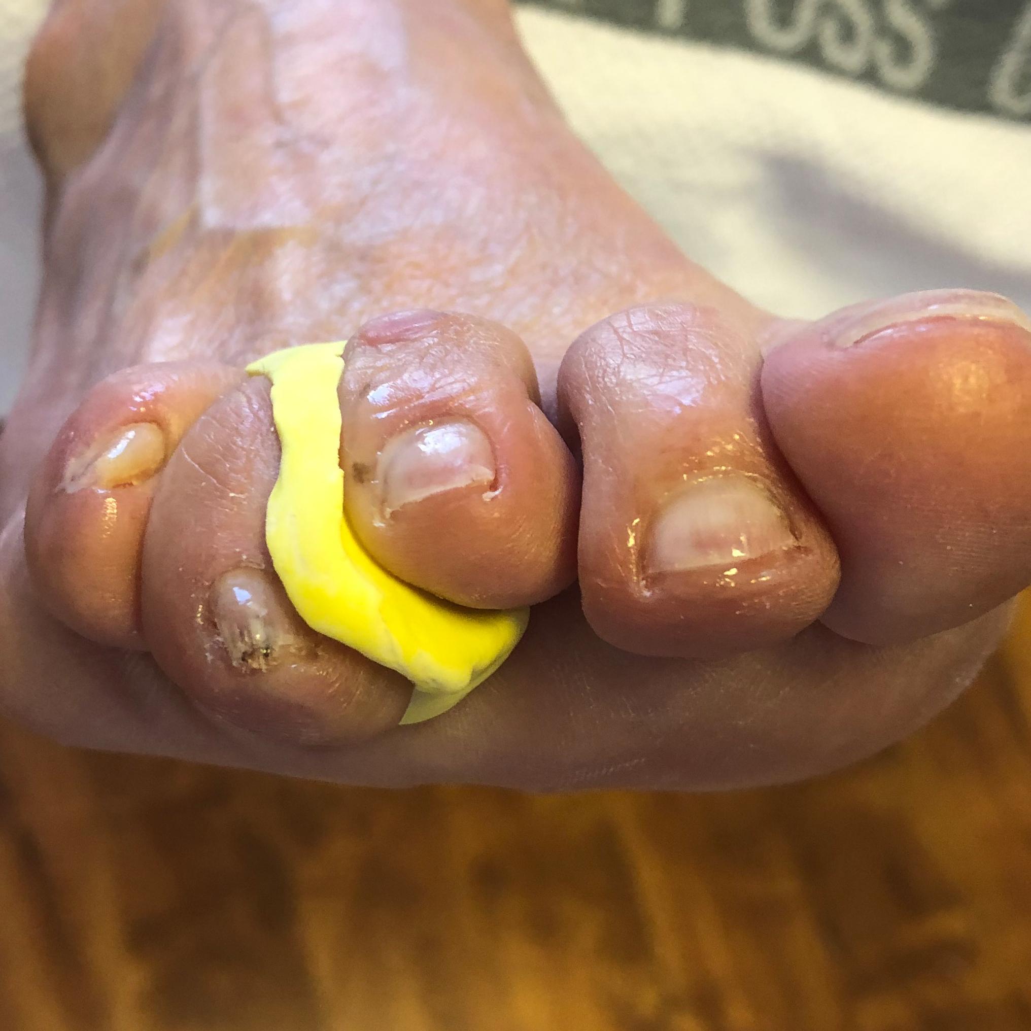 Orthese - Medizinische Fußpflege bei Körperwelt Telge