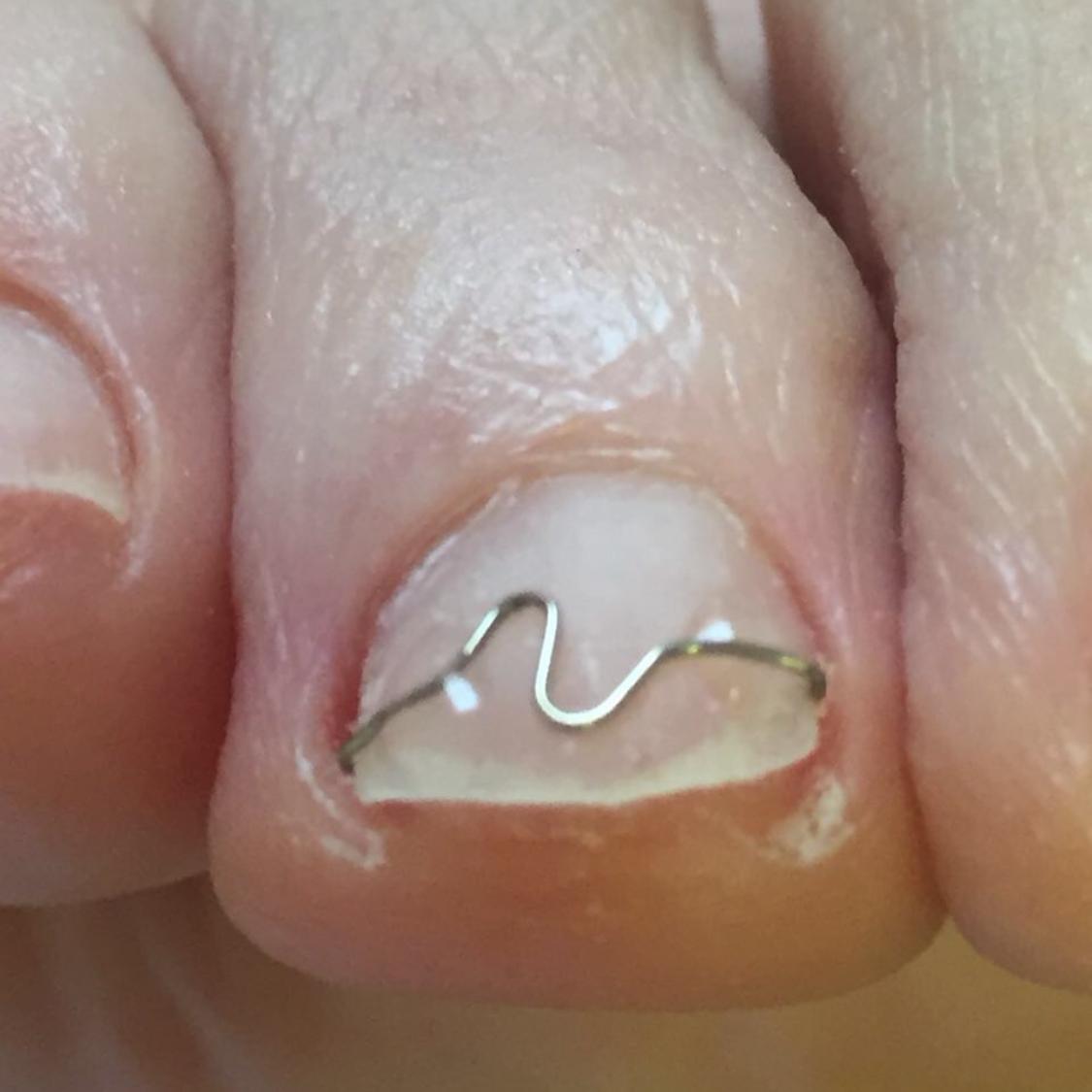 Spange Zehennagel - Medizinische Fußpflege bei Körperwelt Telge